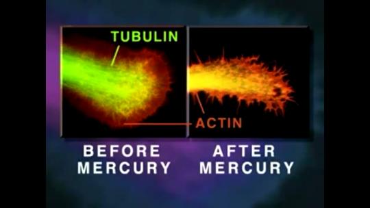 Effetti del mercurio sui neuroni