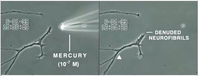 Neurofibrille denudate in seguito ad esposizione al Thimerosal